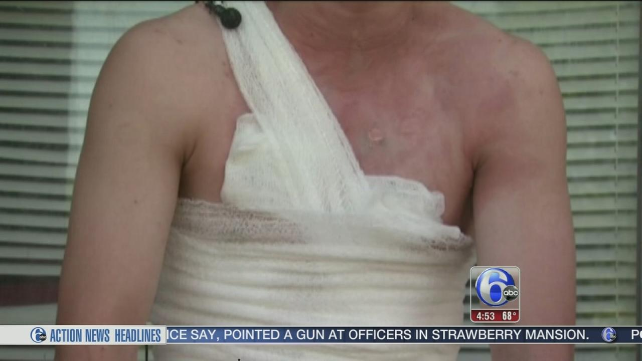 VIDEO: Teen sets himself on fire in video challenge