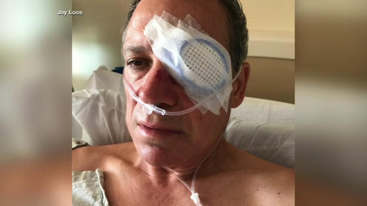 Man who says he was blinded in eye by foul ball sues Cubs