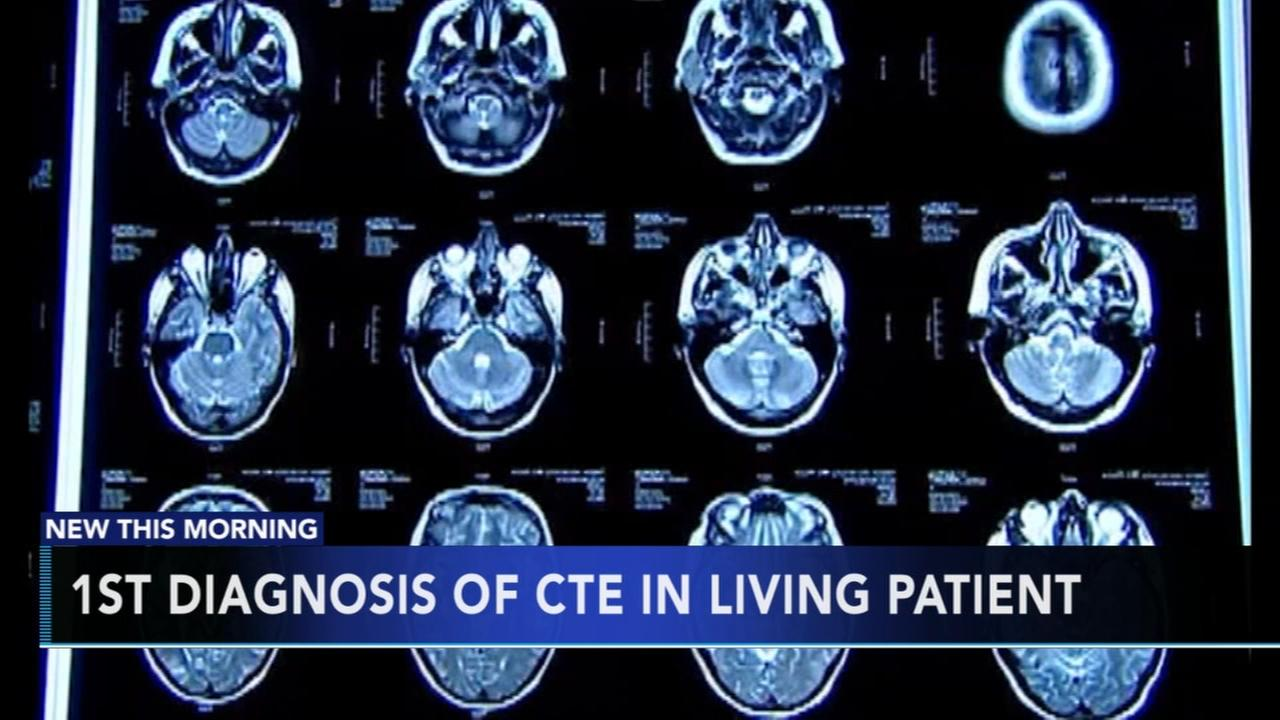 1st diagnosis of CTE in living patient