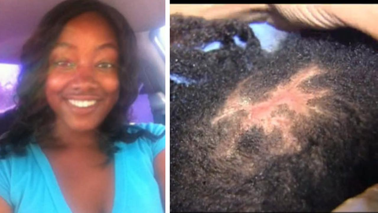 Painful Danger Of Black Market Hair Extensions