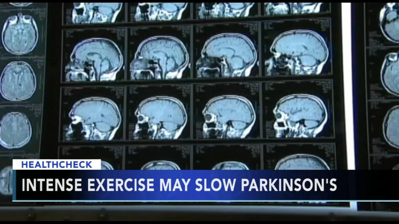 Healthcheck: Intense exercise might slow Parkinsons