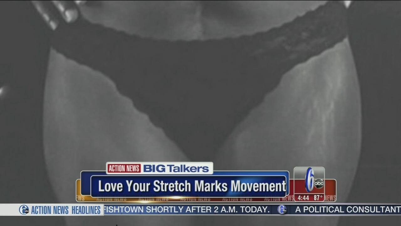 VIDEO: Moms campaign to celebrate stretch marks
