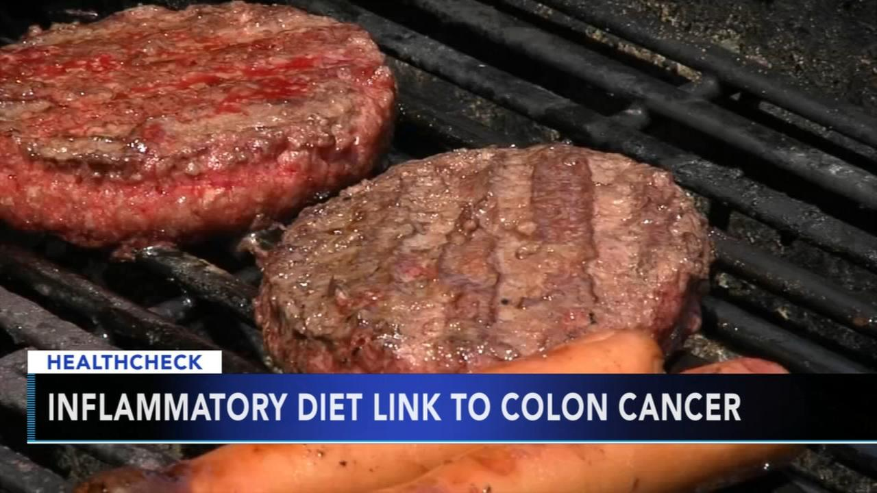 Study links inflammatory diet to colon cancer