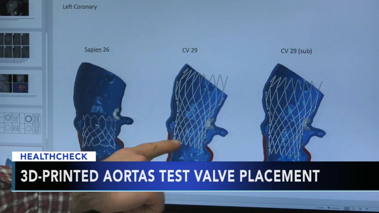 Experts testing 3D printers use to improve artificial valve placement