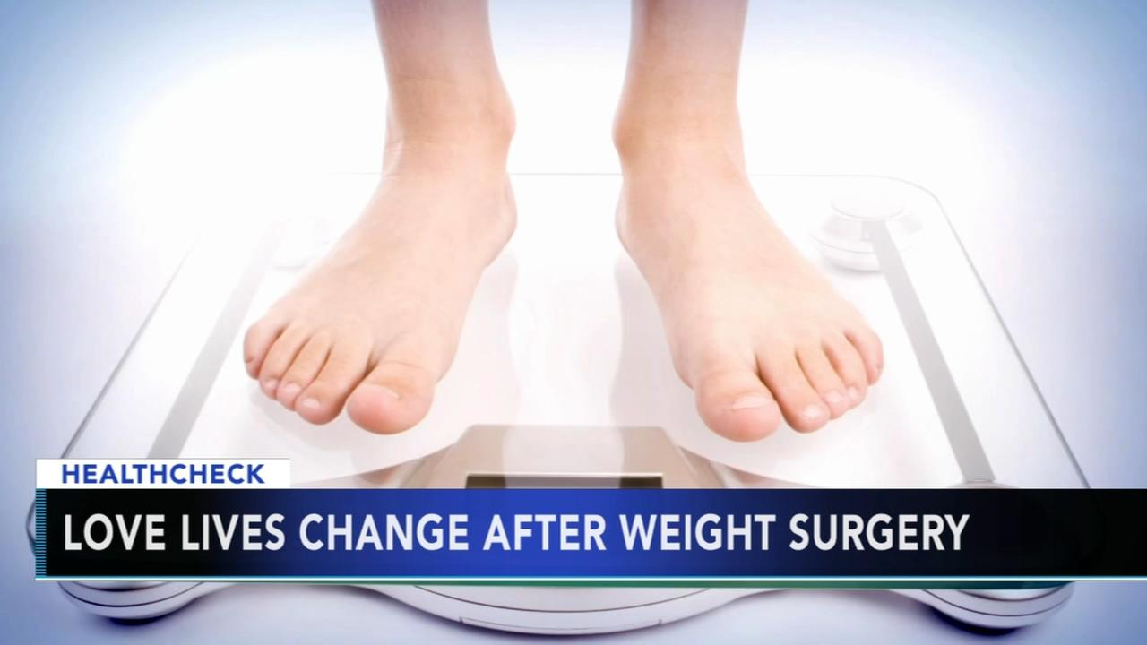 Researchers say love lives change after weight loss surgery