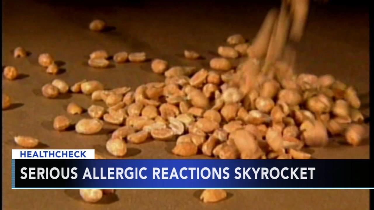 Life-threatening allergic reactions in children are skyrocketing