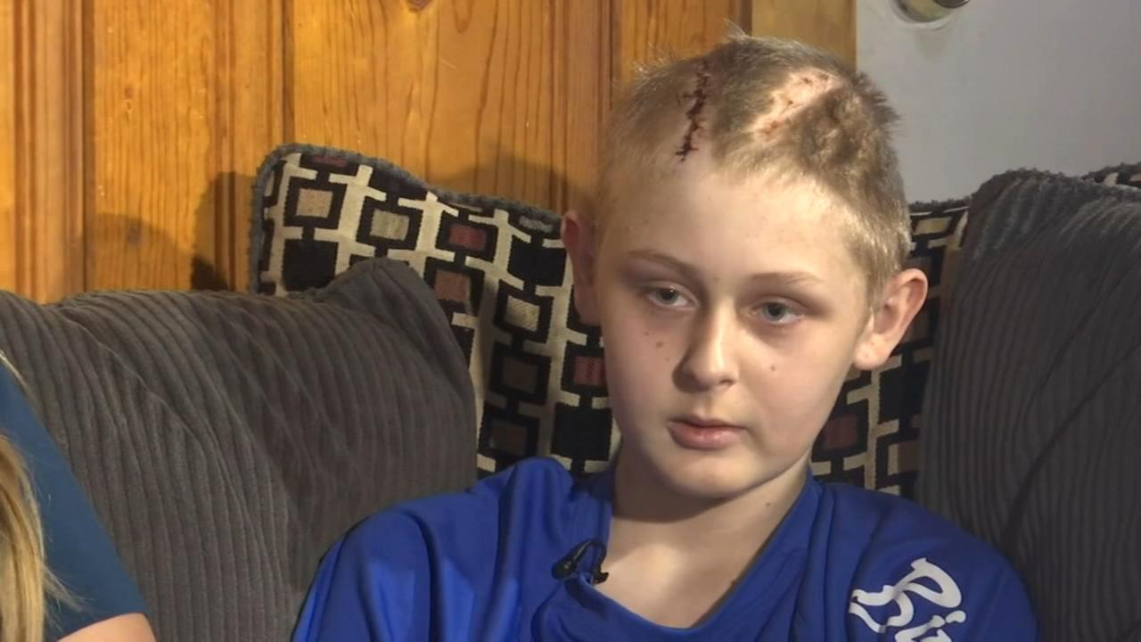 Boy recovering from severe brain trauma
