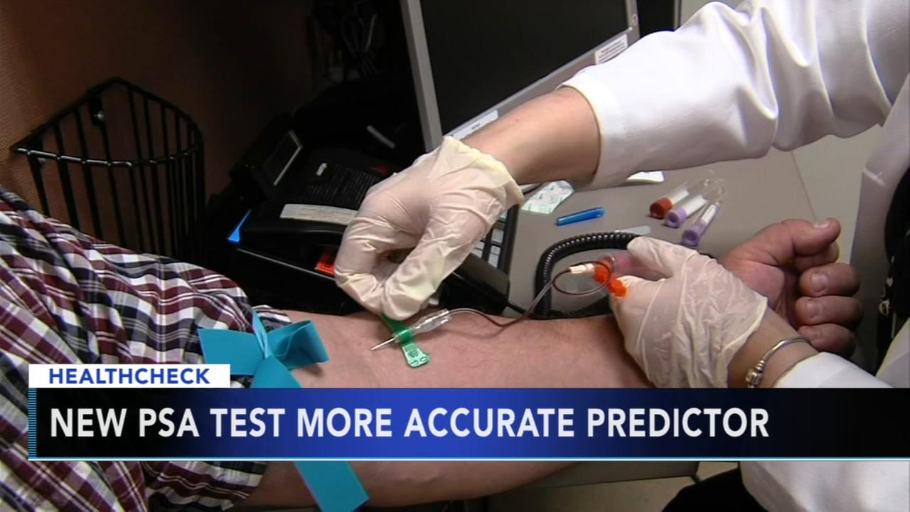 New PSA test more accurate predictor