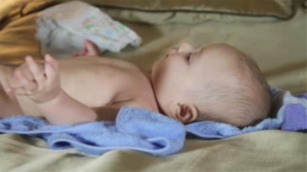 Moisturizing baby may be more important than daily baths