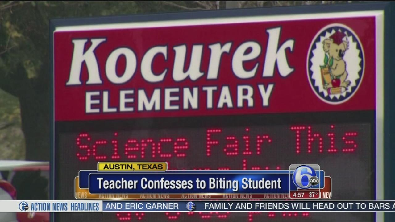 VIDEO: Teacher confesses to biting student
