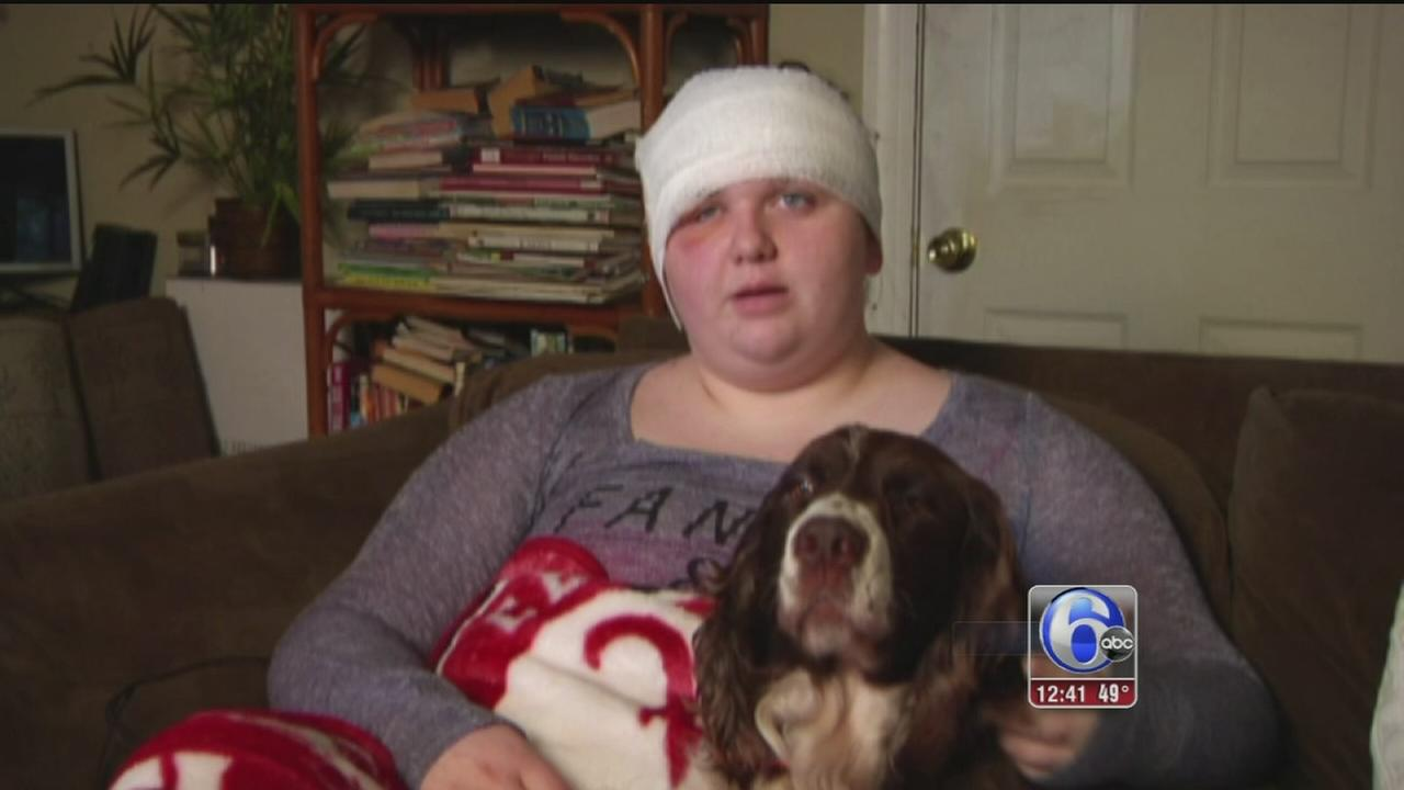 VIDEO: Teenager survives bear attack in Florida