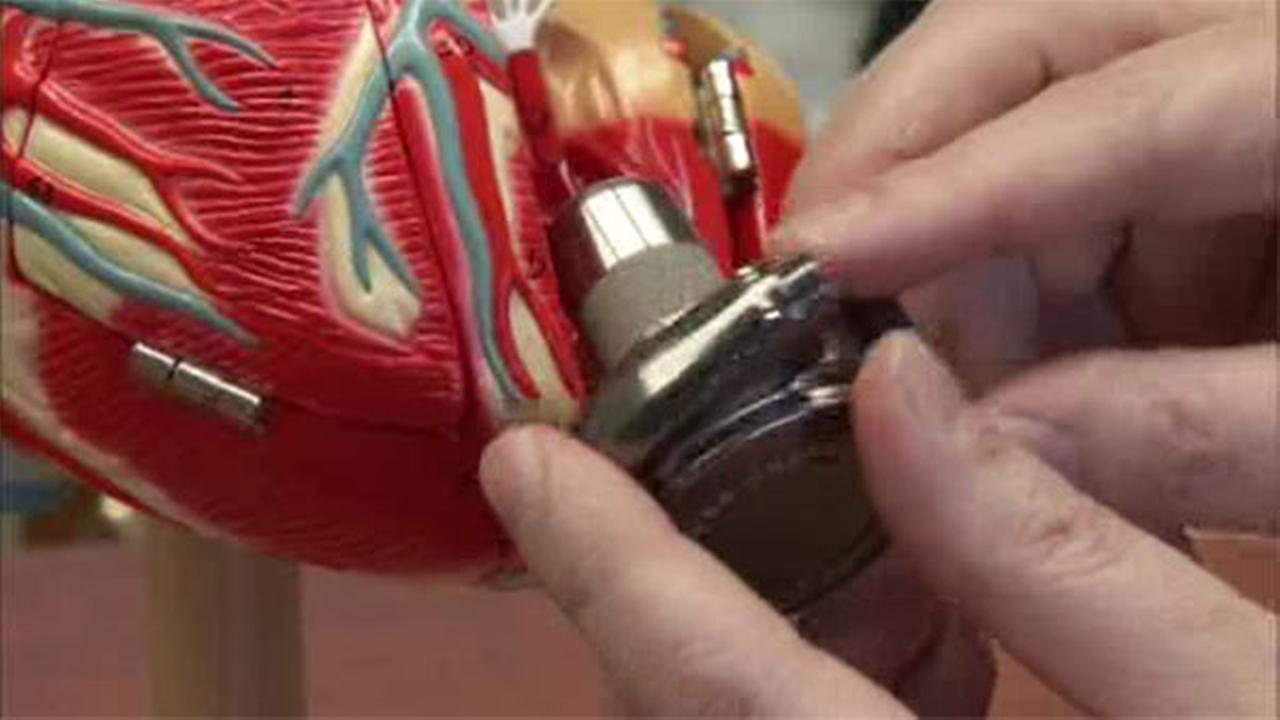 Kids Health Matters: Mechanical heart pumps
