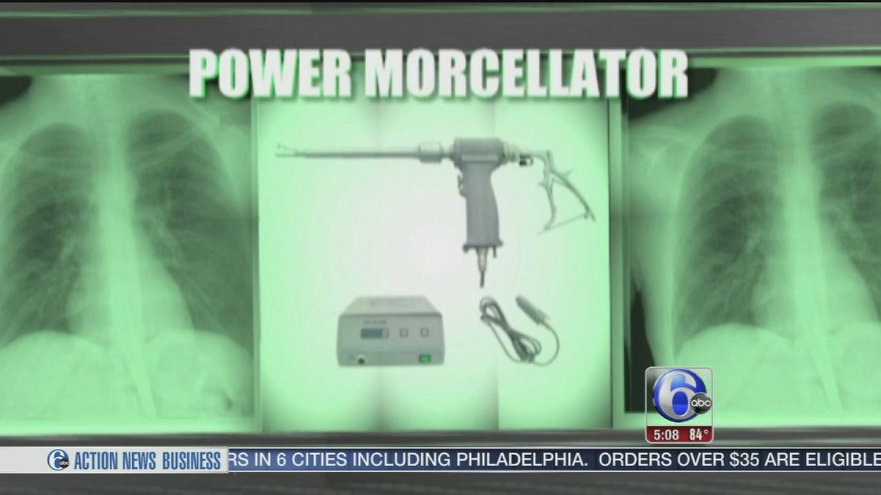 VIDEO: FBI investigates medical device for women linked to cancer