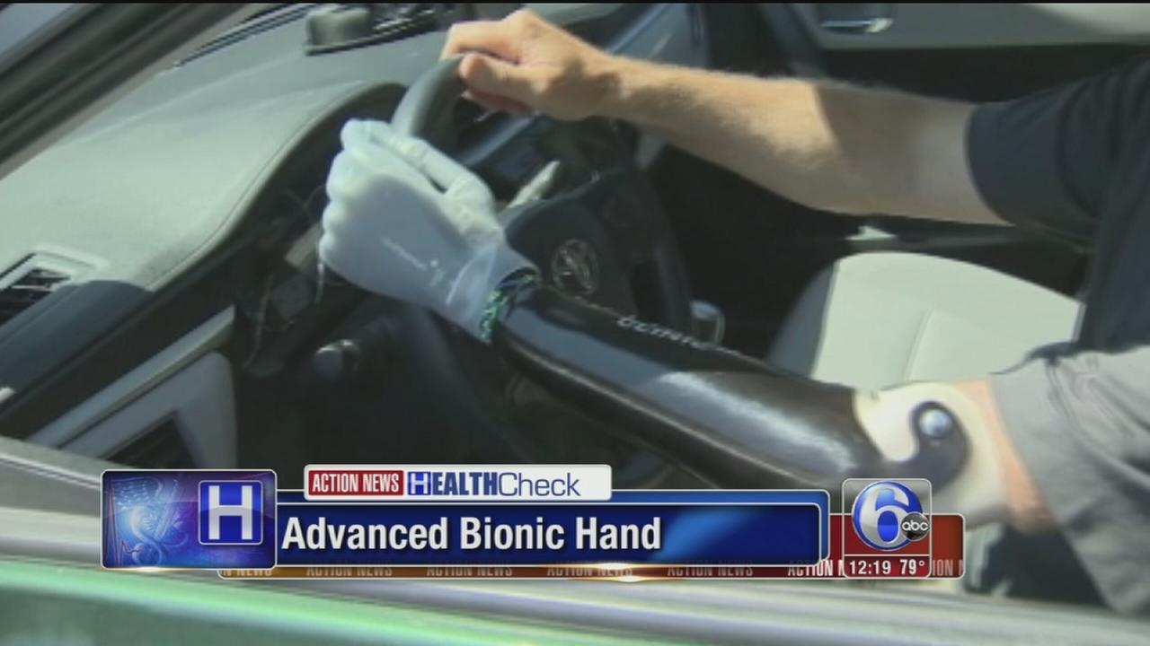 VIDEO: Advanced bionic hand