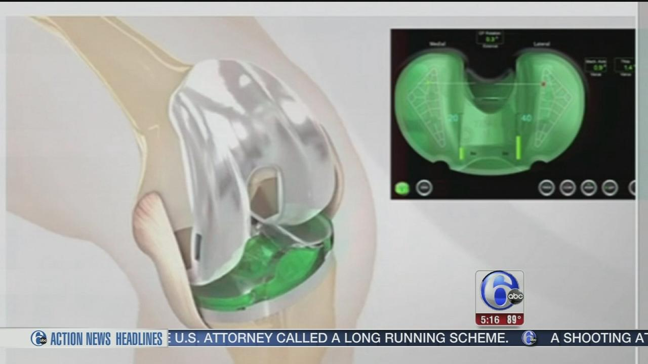 VIDEO: New tool for knee replacement