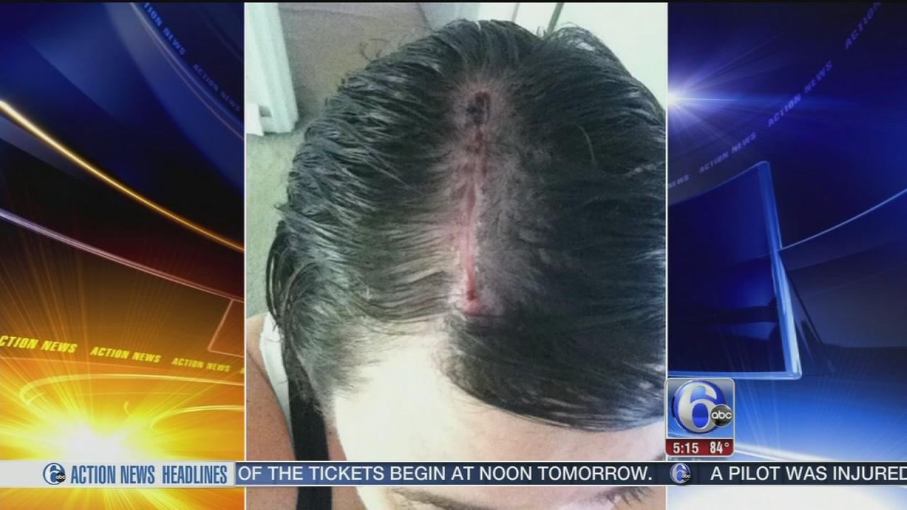 VIDEO: Woman credits hairdresser for catching her skin cancer