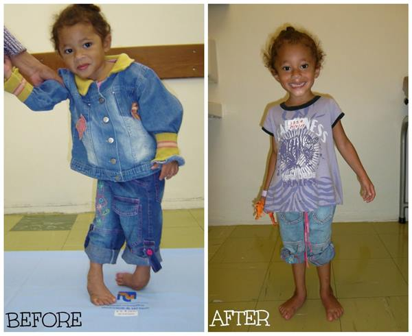 <div class='meta'><div class='origin-logo' data-origin='none'></div><span class='caption-text' data-credit='miraclefeet'>Before and after photos of children treated for clubfoot by miraclefeet</span></div>