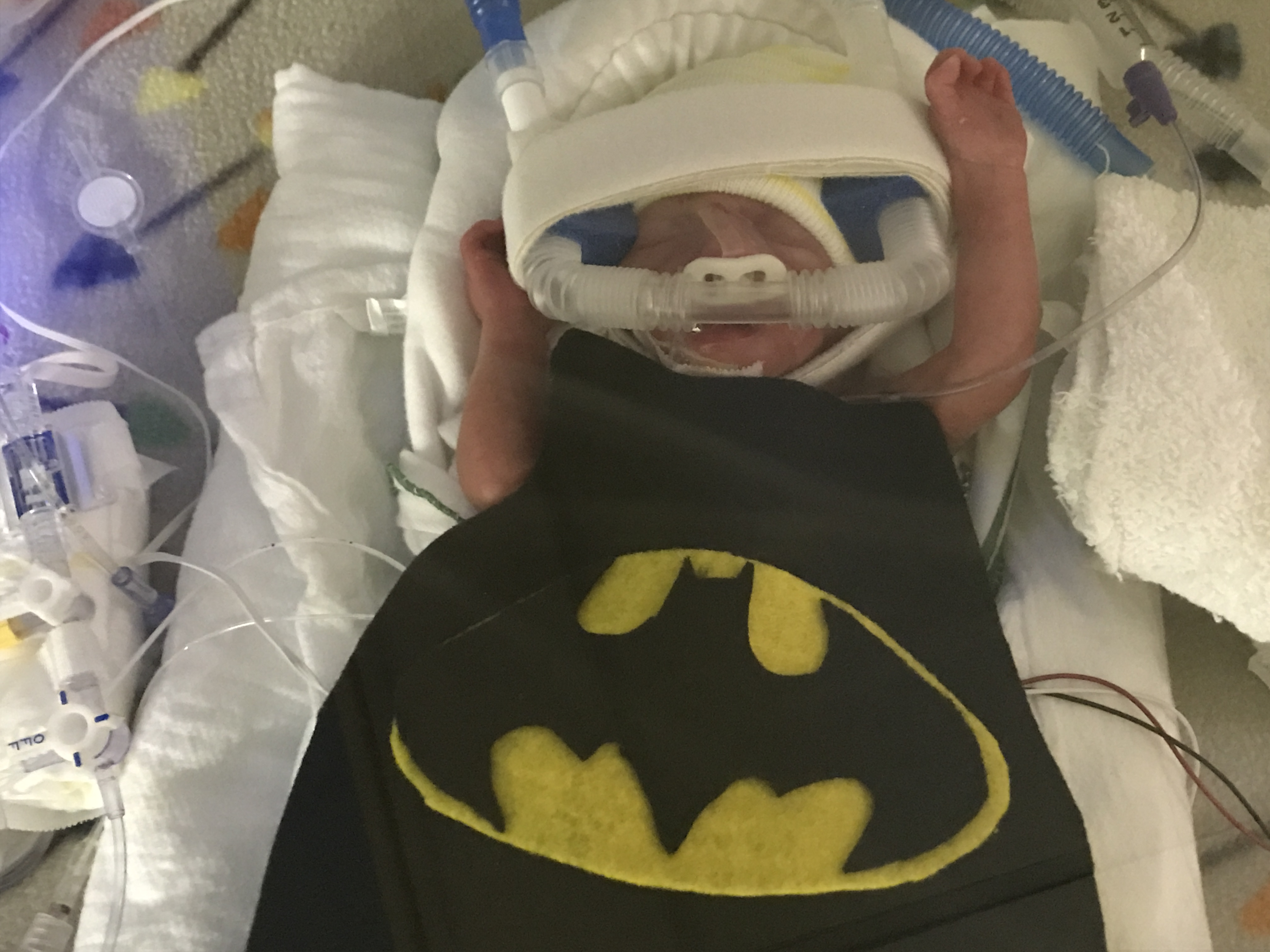 <div class='meta'><div class='origin-logo' data-origin='none'></div><span class='caption-text' data-credit='WakeMed volunteers'>Preemies at WakeMed's NICU are already having some Halloween fun</span></div>