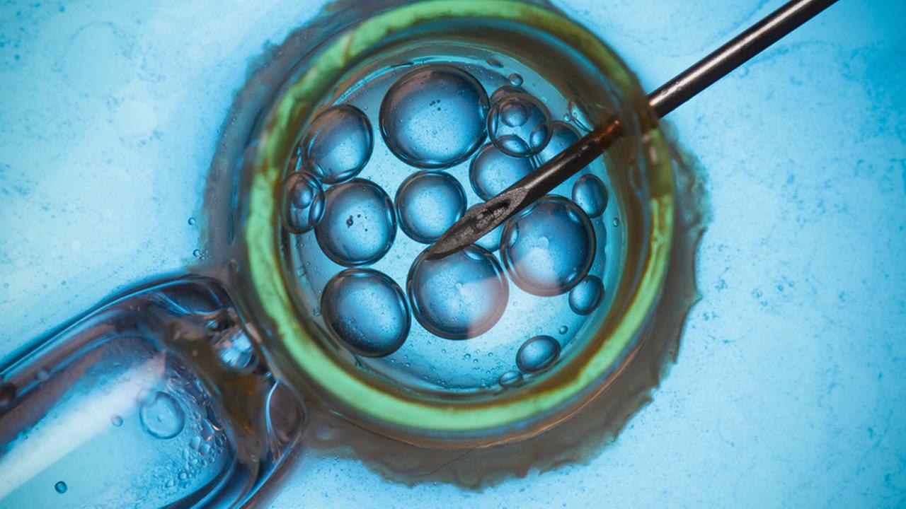 2nd lawsuit filed over lost embryos at OH  fertility clinic