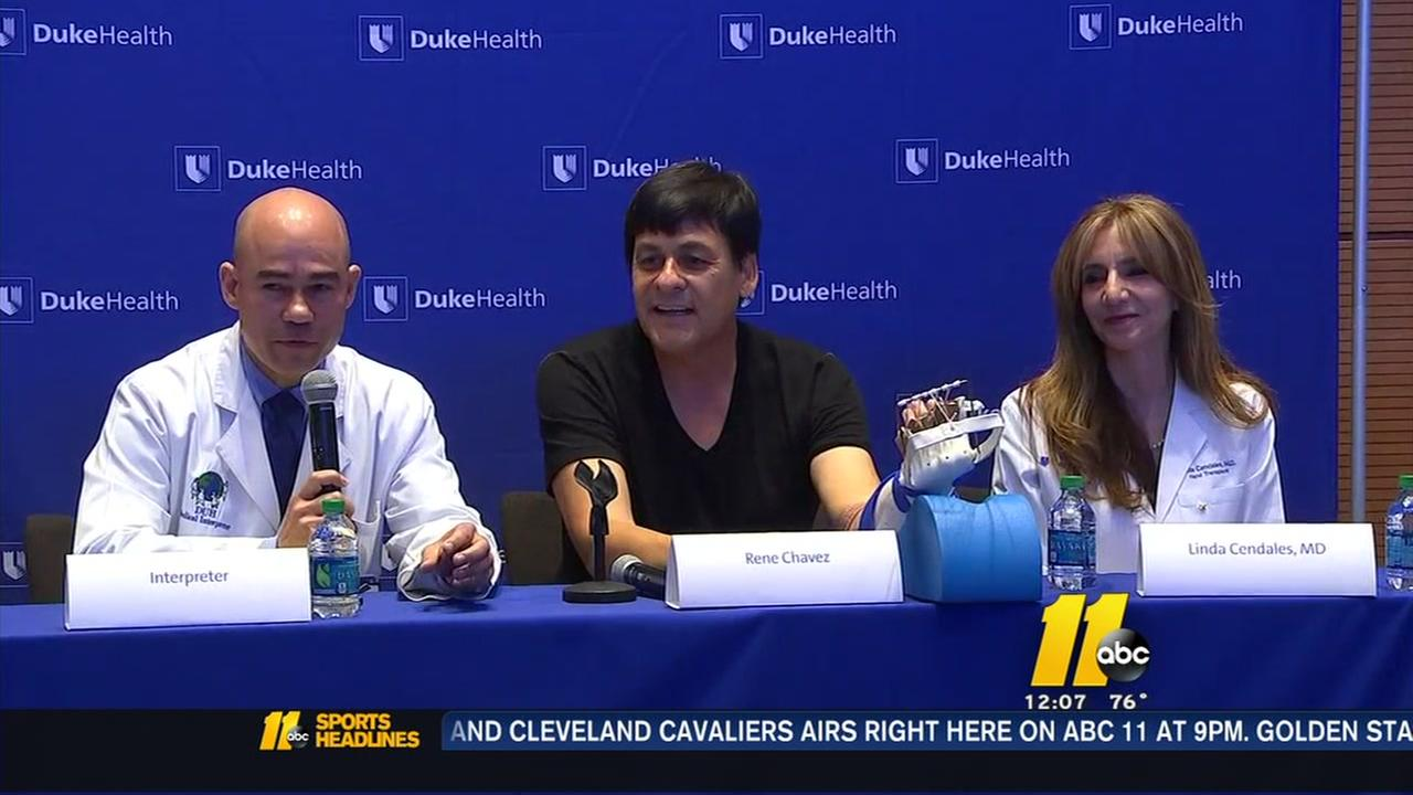 Duke hand transplant