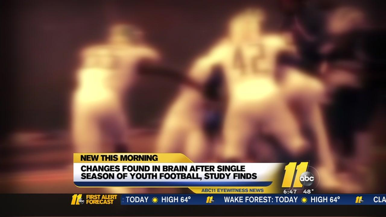Brain changes after youth football