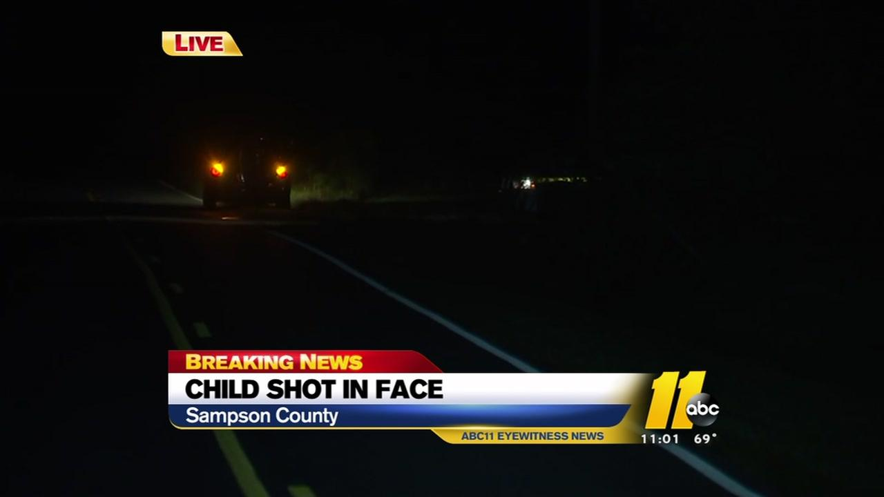Child shot in face in Sampson County