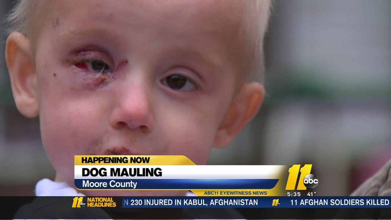 Dog attacks little boy in Moore County