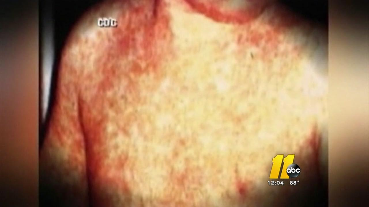 Case of measles reported in Wake County