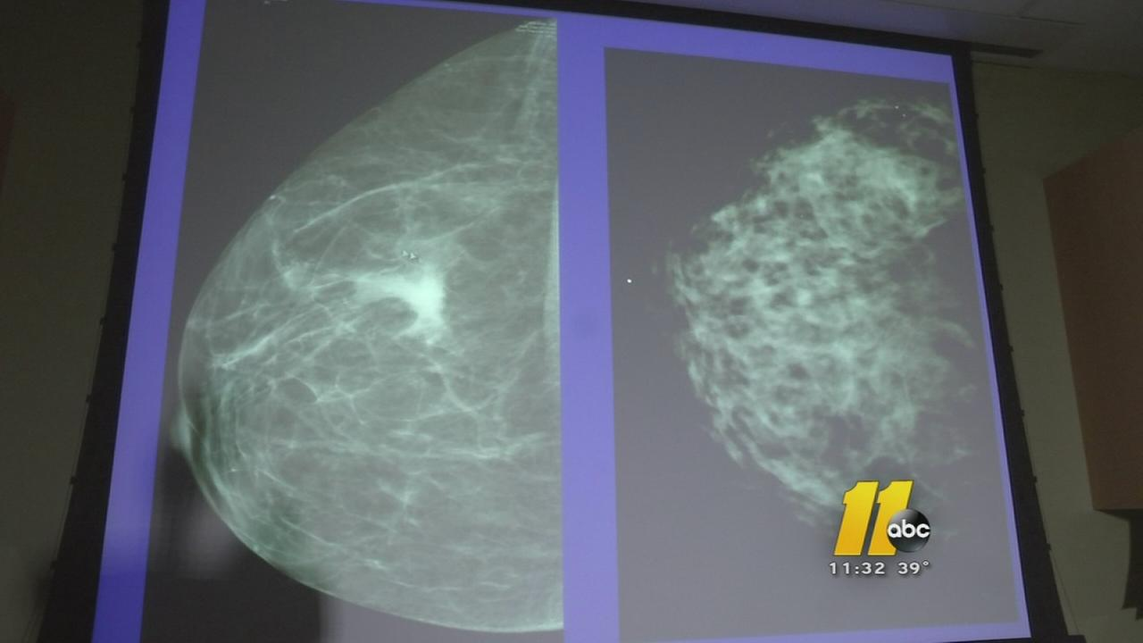 I-Team: What mammograms miss