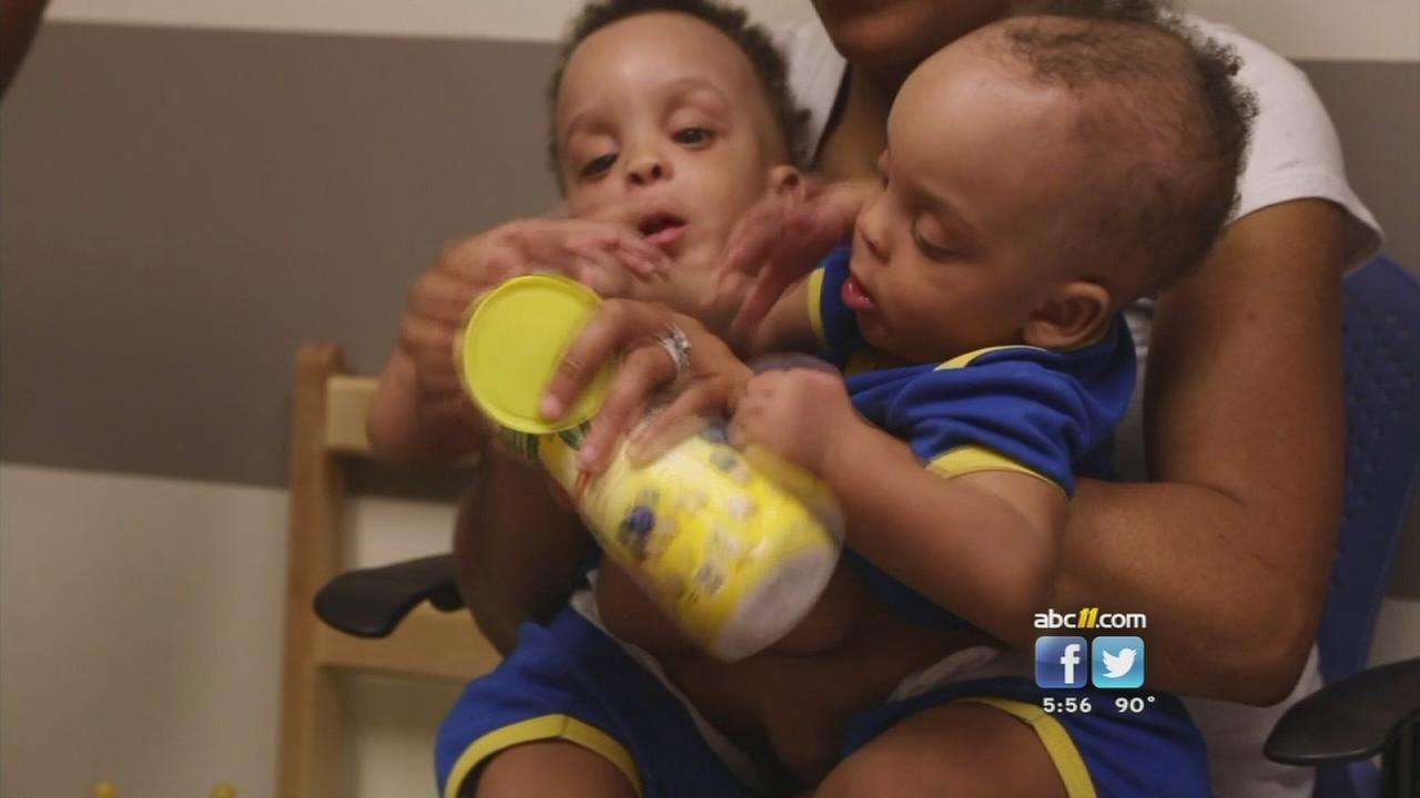 Conjoined twins separated at Duke Hospital