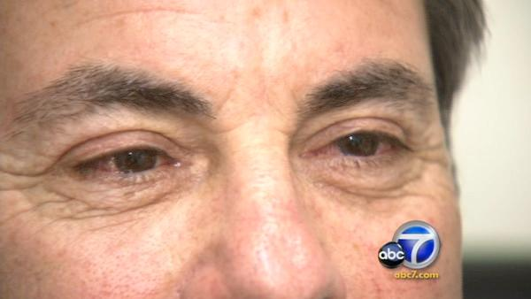 New cosmetic procedure provides whiter eyes