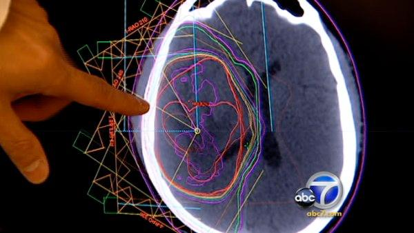 Man beating odds against terminal brain cancer