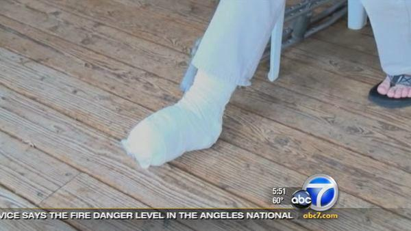 Colo. man cuts off toes to survive accident