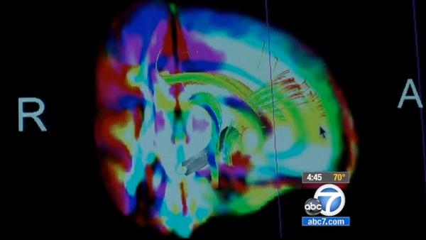 New brain scan shows siblings-with-autism link