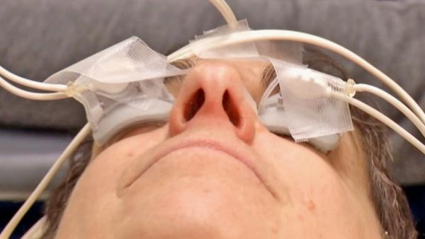 Treatment offers help for dry eyes in minutes