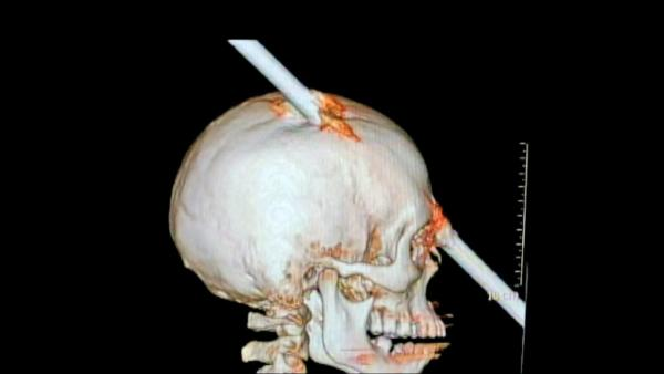 Brazilian man survives after bar pierces head