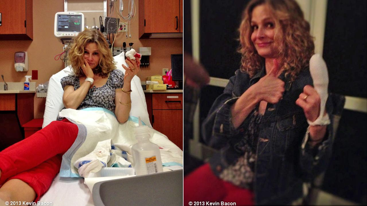 Actress Kyra Sedgwick appears in two photos posted by her husband, actor Kevin Bacon on his WhoSay account, following a kitchen mishap, where the Sedgwick cut off her fingertip.