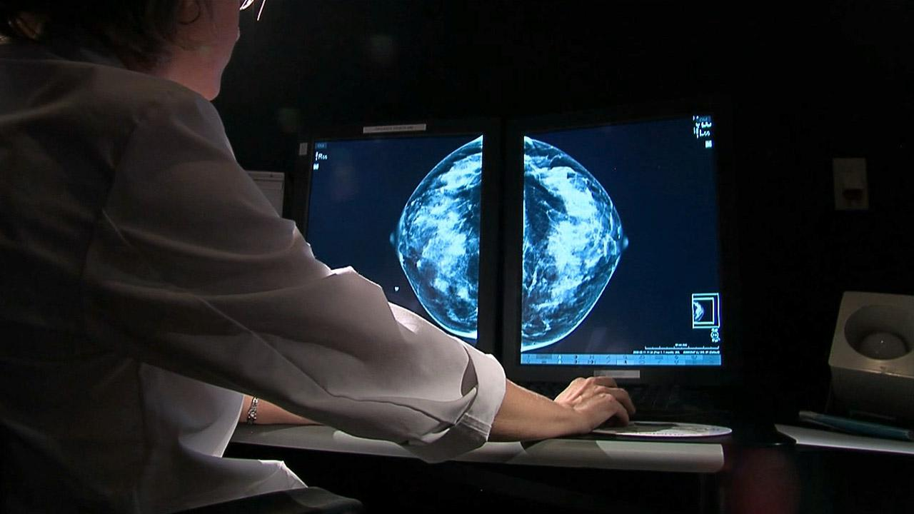 An X-ray image used for a mammogram screening is seen in this file photo.