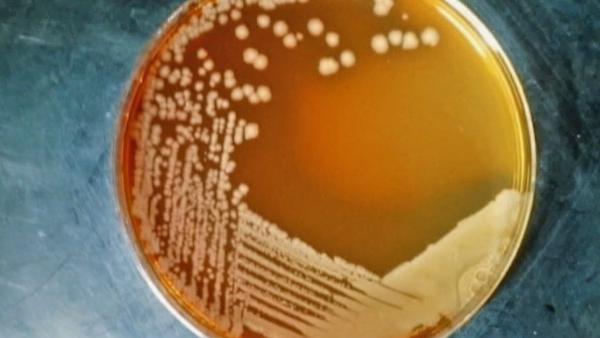 Concern over antibiotic-resistant 'super' bugs