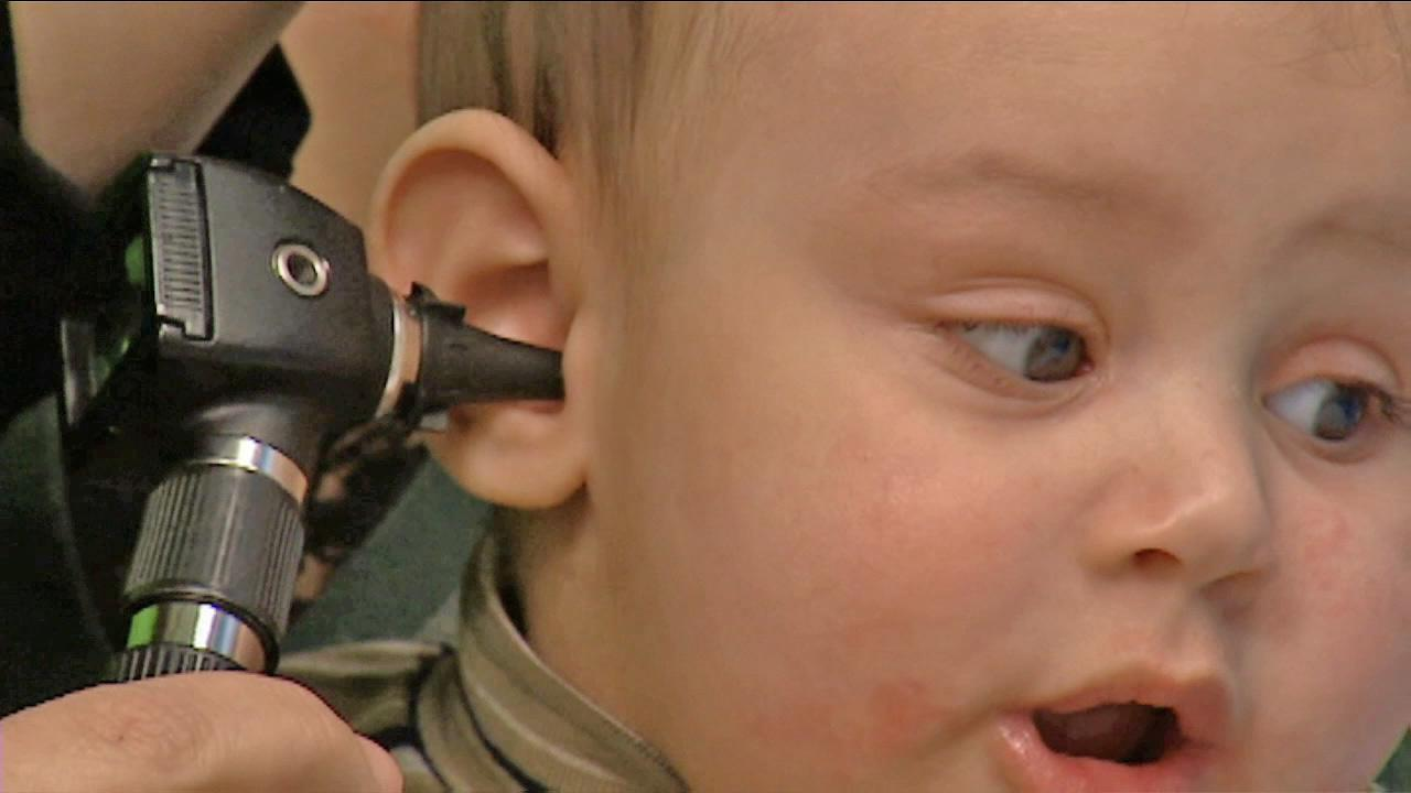 Pediatricians issue new guidelines for ear infections