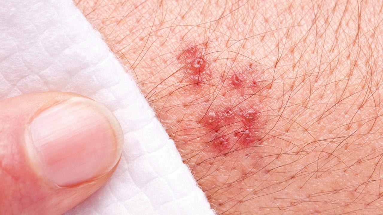 File photo of herpes zoster, commonly known as shingles.