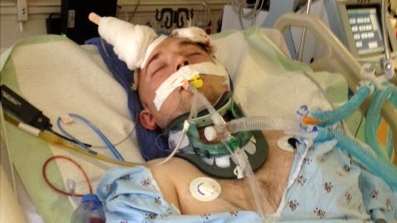 This photo provided by family members of Viktor Silcock shows him fighting for his life after being beaten near Murdy park in Huntington Beach on Friday, May 10, 2013.