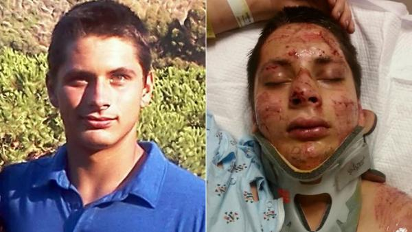 Teen on skateboard injured in HB hit-and-run