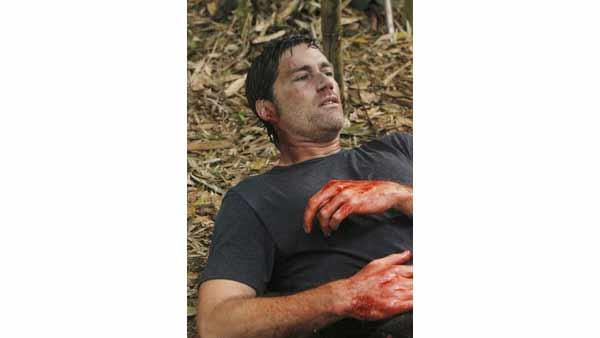 Jack Shepard (Matthew Fox) finds the bleeding part a little worrying.