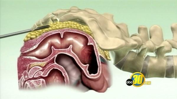 Adult 2008 medicaid missouri dental
