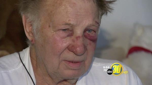 Clovis Man Beaten in Home Invasion Speaks Out
