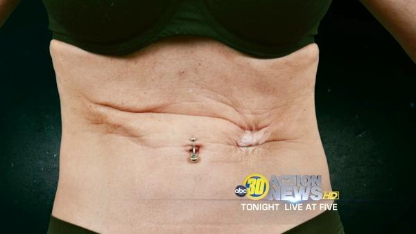 WARNING: Considering cosmetic surgery?
