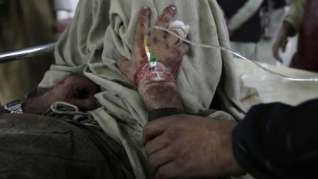 A man holds a hand of his injured family member at a local hospital for treatment in Peshawar, Pakistan on Thursday, Feb. 14, 2013.