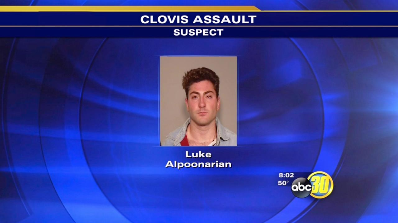 Assault suspect turns himself in to Clovis police
