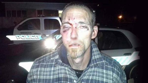 Bloody burglary suspect caught by Madera neighbors